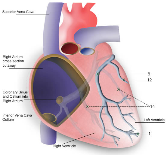 Final Position Of Transvenous Leads Into The Cardiac Veins