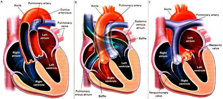 refacerea circulației sanguine a articulației șoldului)