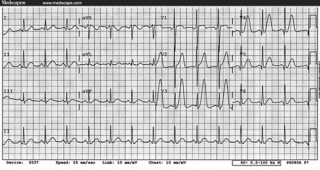 Normal Electrocardiogr...Q Wave Formation