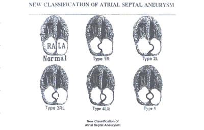 intra-atrial septum aneurysm