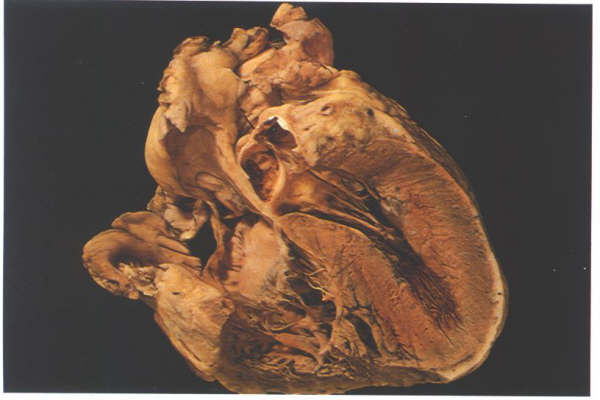 Anatomy of the heart figure 6d frontal section through the heart showing the junction between the inlet and trabecular portions of the right ventricle with the inlet septum ccuart Gallery