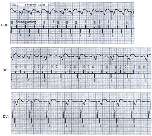 atrial fibrillation with rapid ventricular response b atrial flutter
